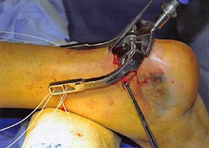 Mini-Open Repair of Achilles Rupture in the National Football League